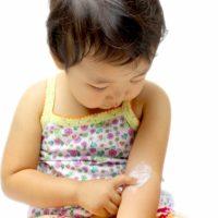 蕁麻疹の塗り薬は子供に使ってもいい?おすすめの市販薬は?